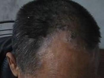 头部牛皮癣患者的注意事项是什么