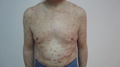 中老年银屑病的病情特点有哪些